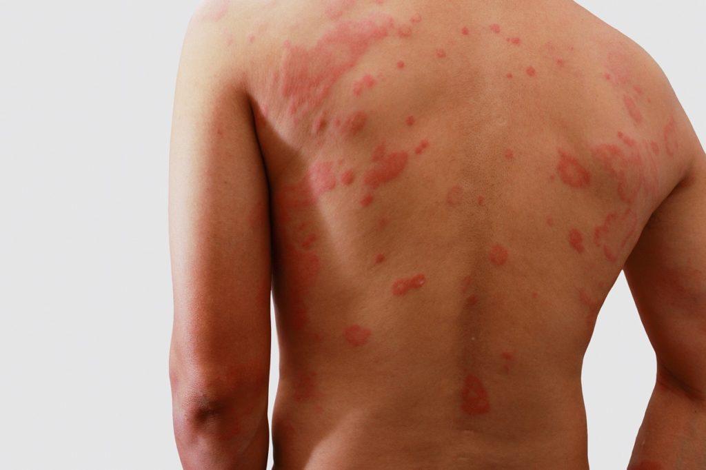 Oft beschränkt sich der Ausschlag auf bestimmte Körperbereiche wie den Rücken, Bauch oder die Achselhöhlen. (Bild: chaphot/fotolia.com)