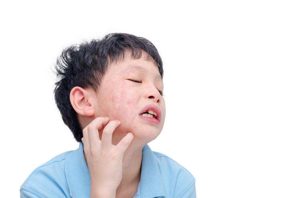 Eine Allergie, z.B. gegenüber bestimmten Inhaltsstoffen von Pflegeprodukten, kann zu stark juckendem Hautausschlag führen. (Bild: gamelover/fotolia.com)