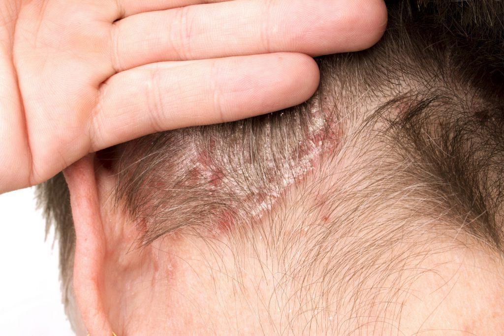 Kennzeichen einer Schuppenflechte sind scharf begrenzte Hautrötungen mit silbrig-weißen Schuppen. (Bild: Milan Lipowski/fotolia.com)