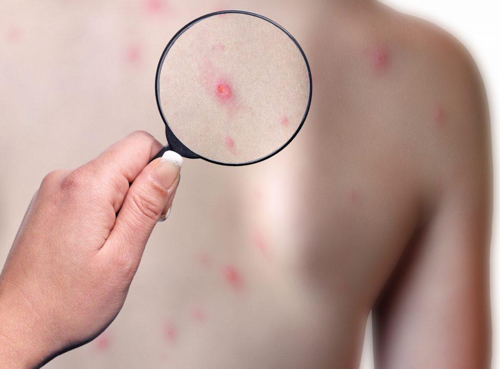 Windpocken zählen zu den häufigsten Kinderkrankheiten und sind hochansteckend. Kennzeichnend für die Viruserkrankung ist ein juckender Ausschlag mit rot umrandeten Bläschen. (Bild: meryll/fotolia.com)