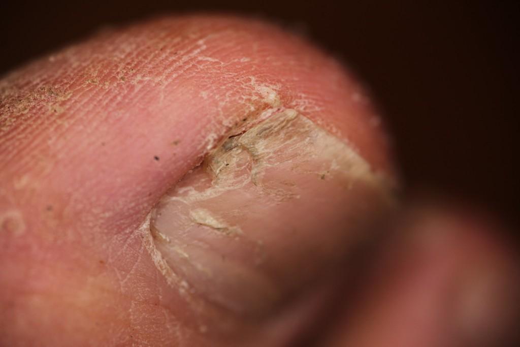 Die Weiße von gribka der Nägel auf den Händen