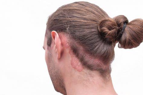 Gemeinsame Kopfjucken - Juckende Kopfhaut: Ursachen, Behandlung und Hausmittel #YM_66