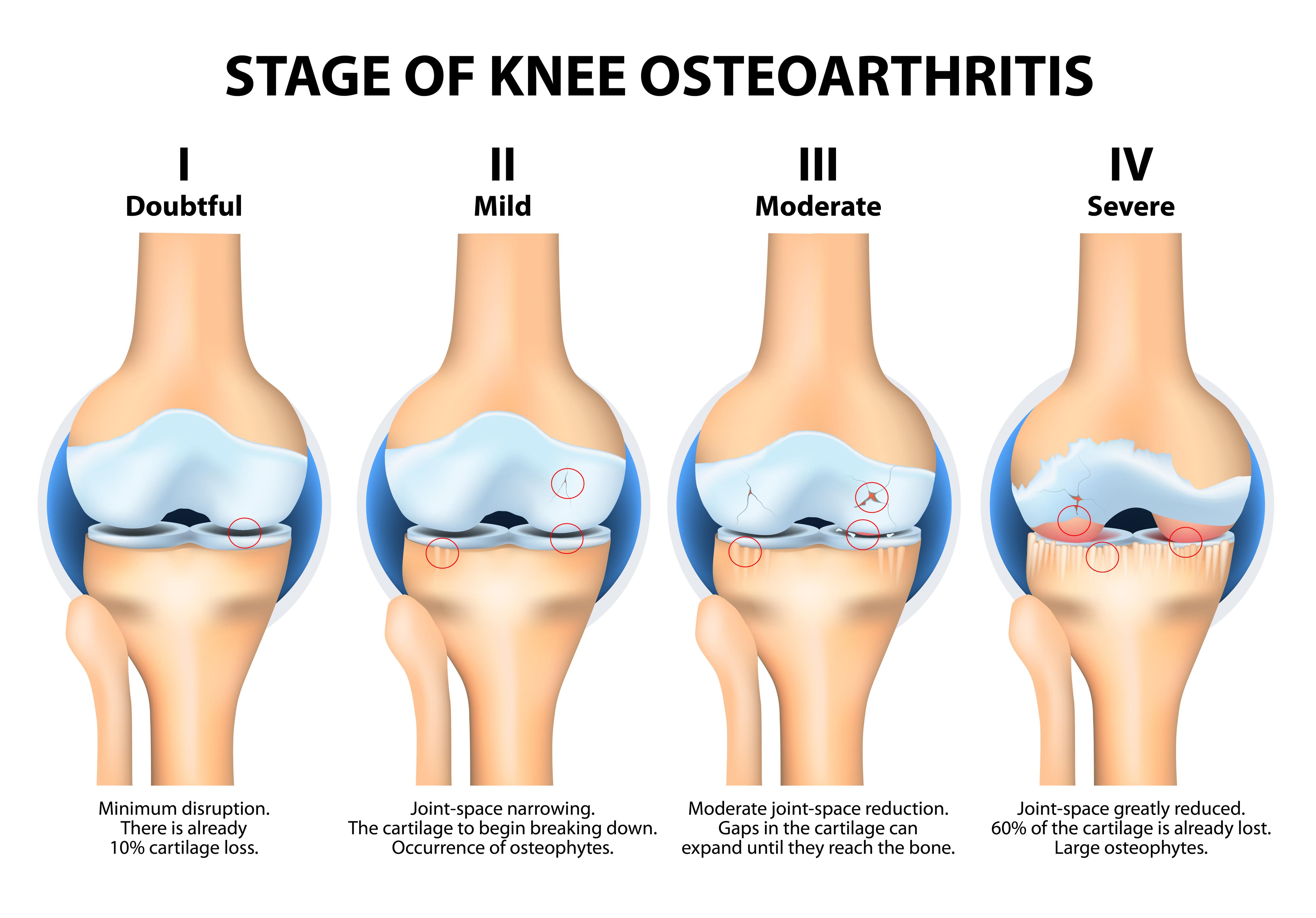 Diagnose einer Kniegelenksarthrose