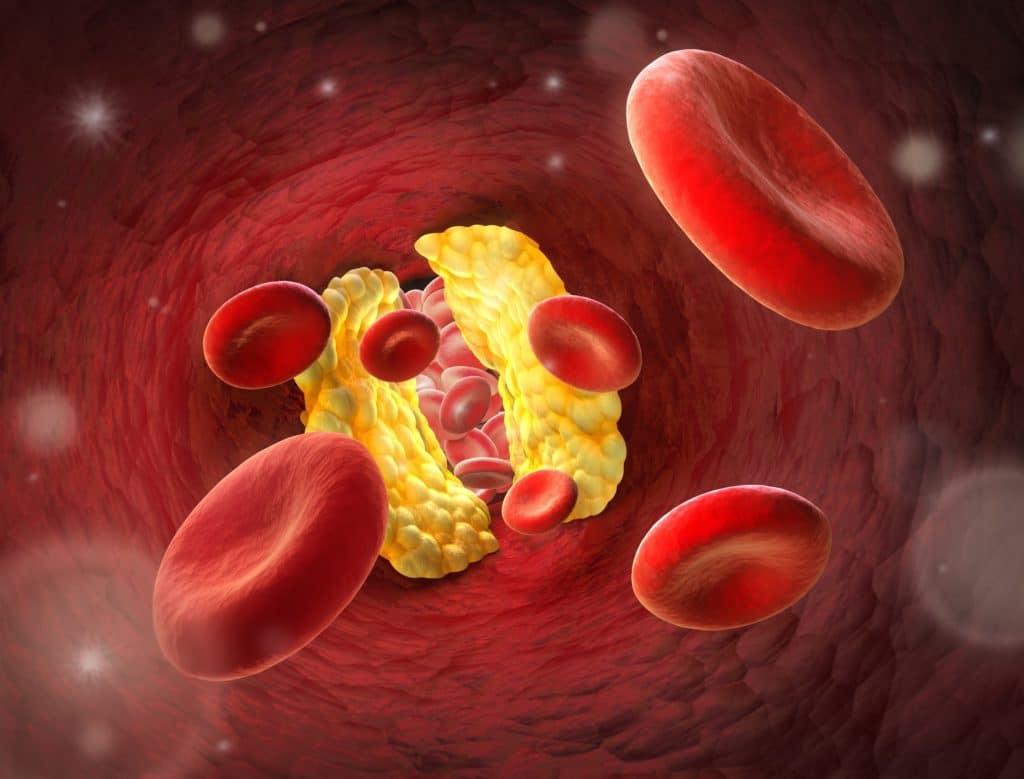 Eine Arterie ist mit Ablagerungen zugesetzt, die den Blutfluss behindern.
