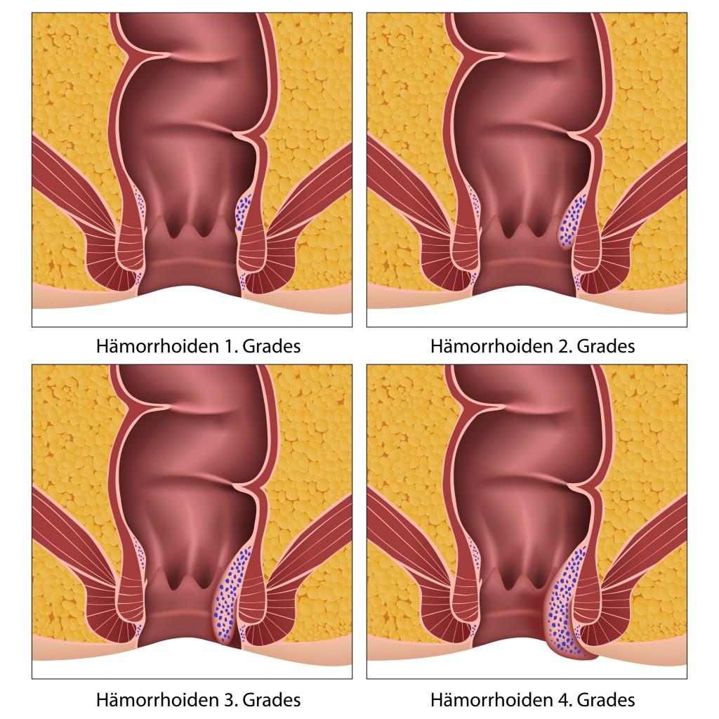 Hmorrhoiden Erkrankungsgrade