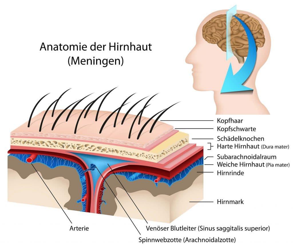 Hirnblutung - Ursachen, Symptome und Therapie