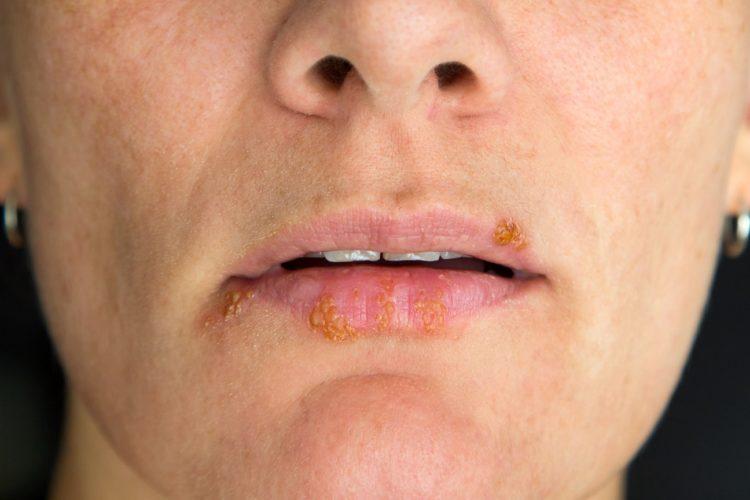 Neue Therapien: Herpes mit körpereigenem Protein
