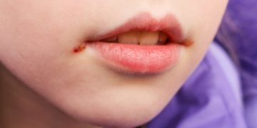 Eingerissene Mundwinkel sind meist sehr unangenehm und heilen nur langsam ab. (Bild: Victoria М/fotolia.com)