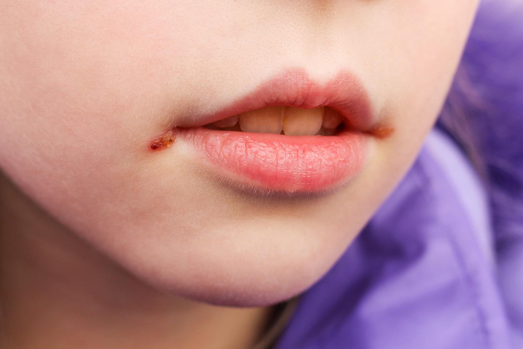 Lippe neurodermitis Lippenbeschwerden