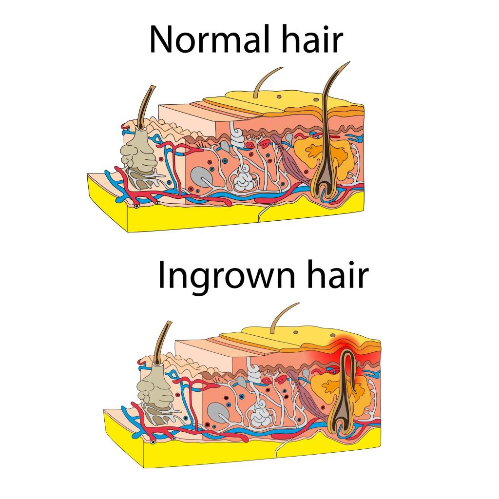 Haare wachsen unter der haut entzundung