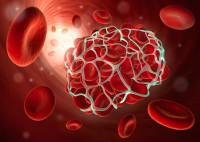 Blutgerinsel