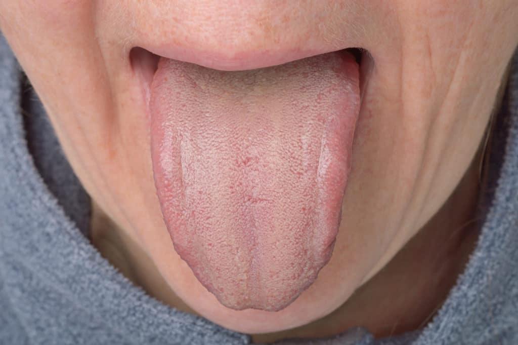 Belegte zunge braun Zungenbelag Braun