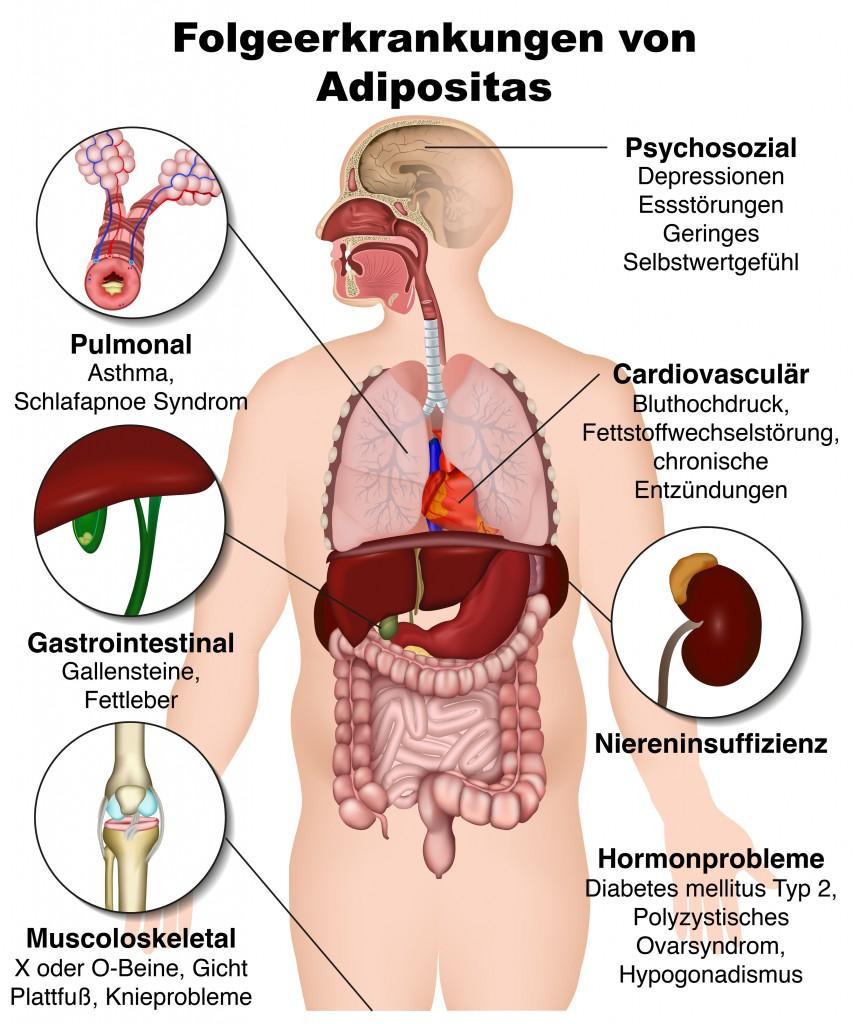 Das sind die möglichen gesundheitlichen Folgen von Adipositas.