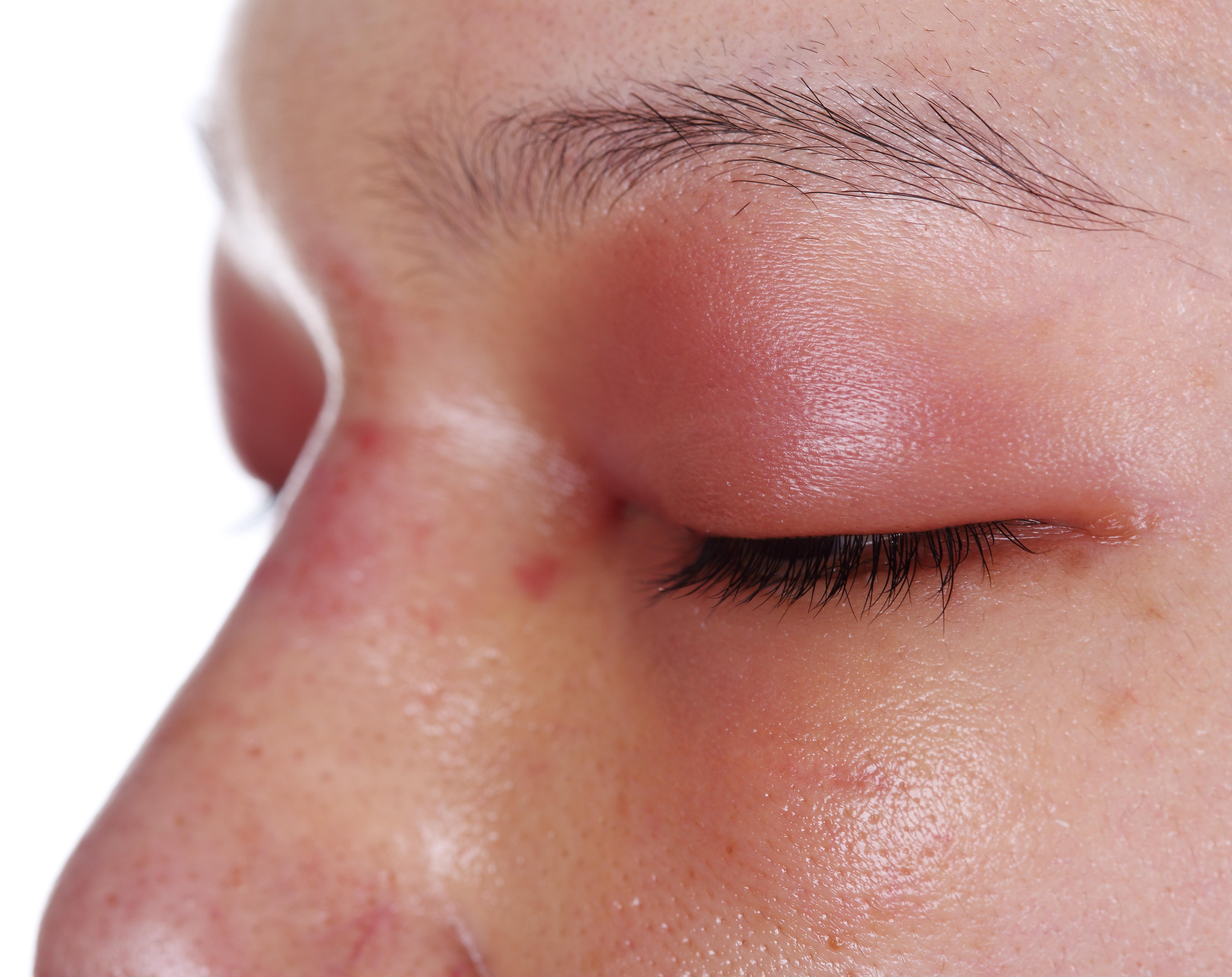 Lidrandentzündung (Blepharitis): Ursachen, Symptome und Behandlung