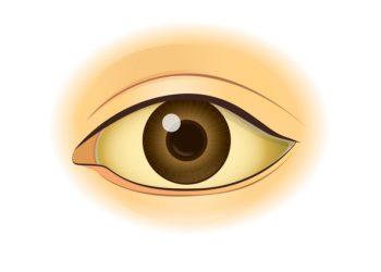 Eine Gelbfärbung des Auges deutet meist auf eine Erkrankung von Leber oder Galle hin. (Bild: logo3in1/fotolia.com)