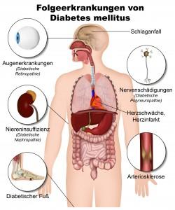 Folgeerkrankungen von Diabetes mellitus