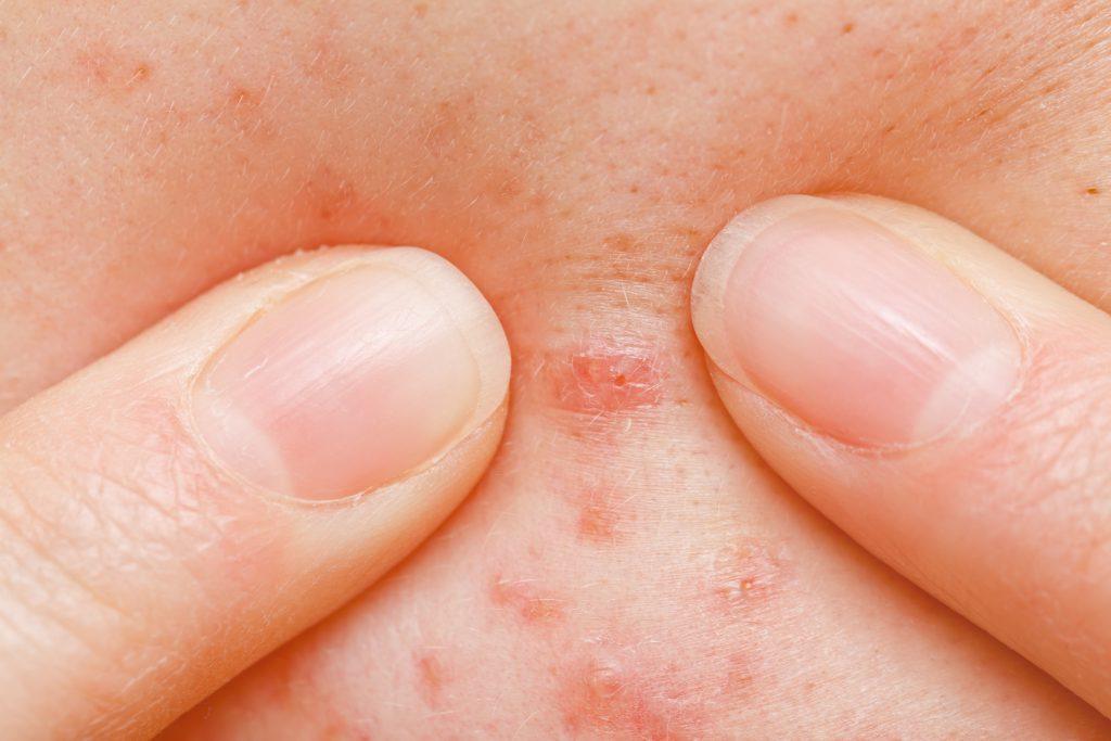 Drücken oder Quetschen Sie auf keinen Fall an dem Furunkel herum. Denn dadurch kann sich die Entzündung schnell ausbreiten und zu ernsthaften Komplikationen führen. (Bild: Ocskay Bence/fotolia.com)