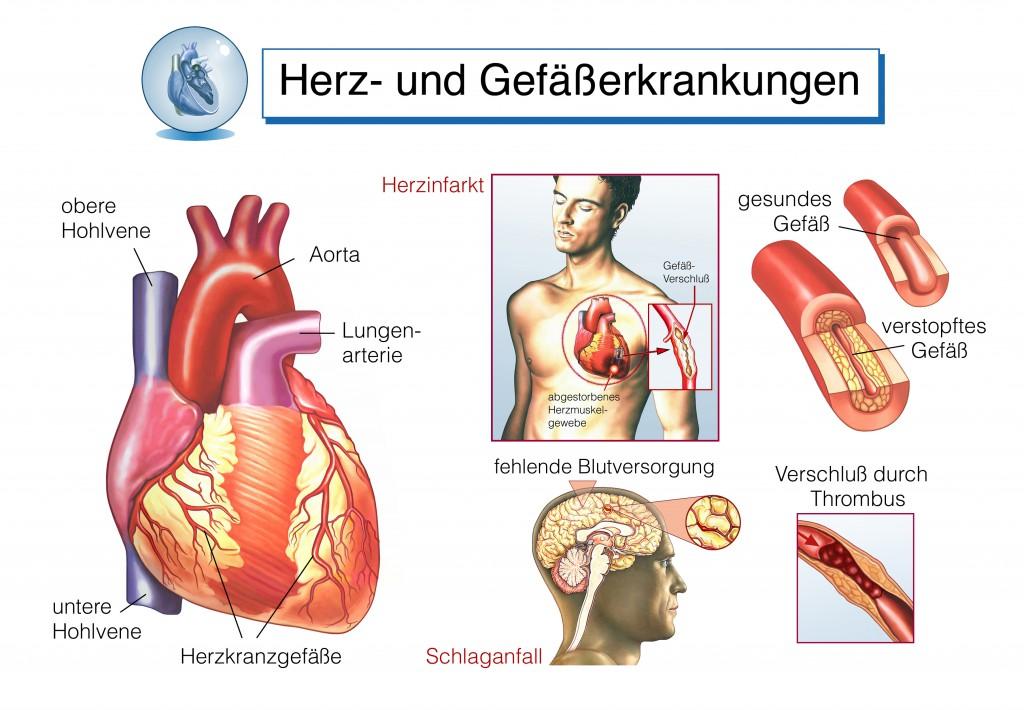 Fein Herzvenen Galerie - Anatomie Von Menschlichen Körperbildern ...