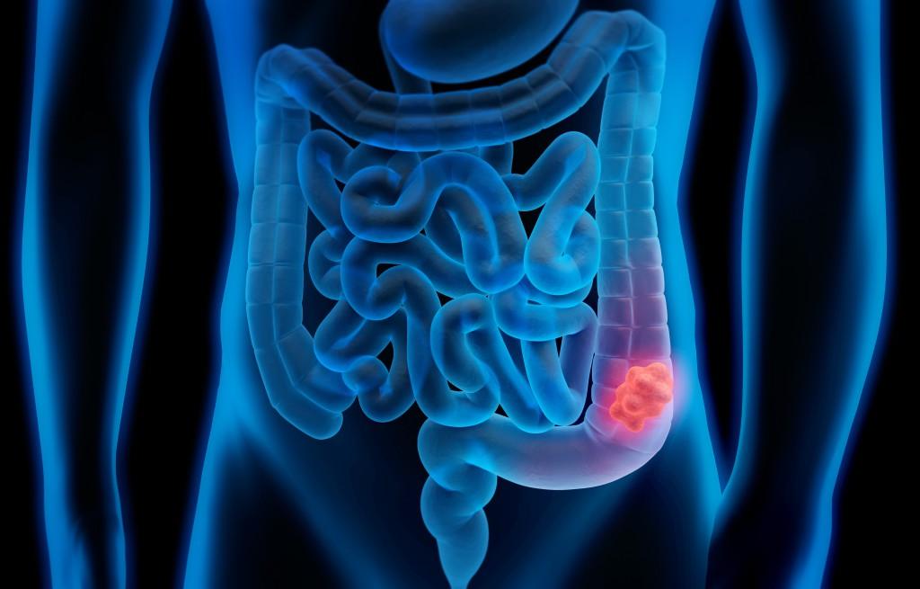 Bauchspeicheldrüsenkrebs verbirgt sich oft hinter harmlosen Anzeichen