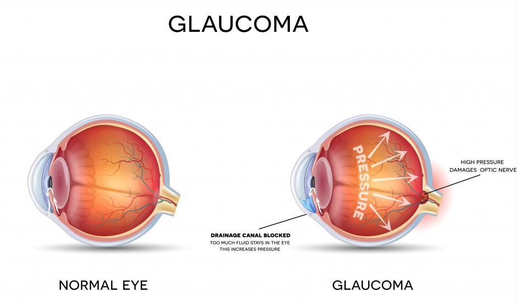 Bei einem Glaukom sind Sehstörungen infolge eines veränderten Augeninnendrucks festzustellen. (Bild: reineg/fotolia.com)