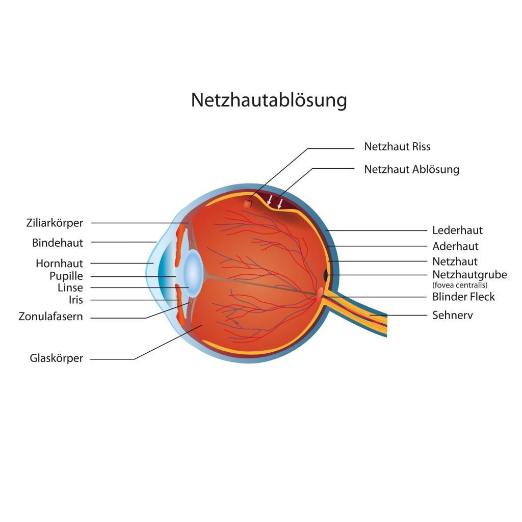 Augenflimmern kann auch auf eine Netzhautablösung zurückgehen, bei der schlimmstenfalls eine Erblindung droht. (Bild: bilderzwerg/fotolia.com)