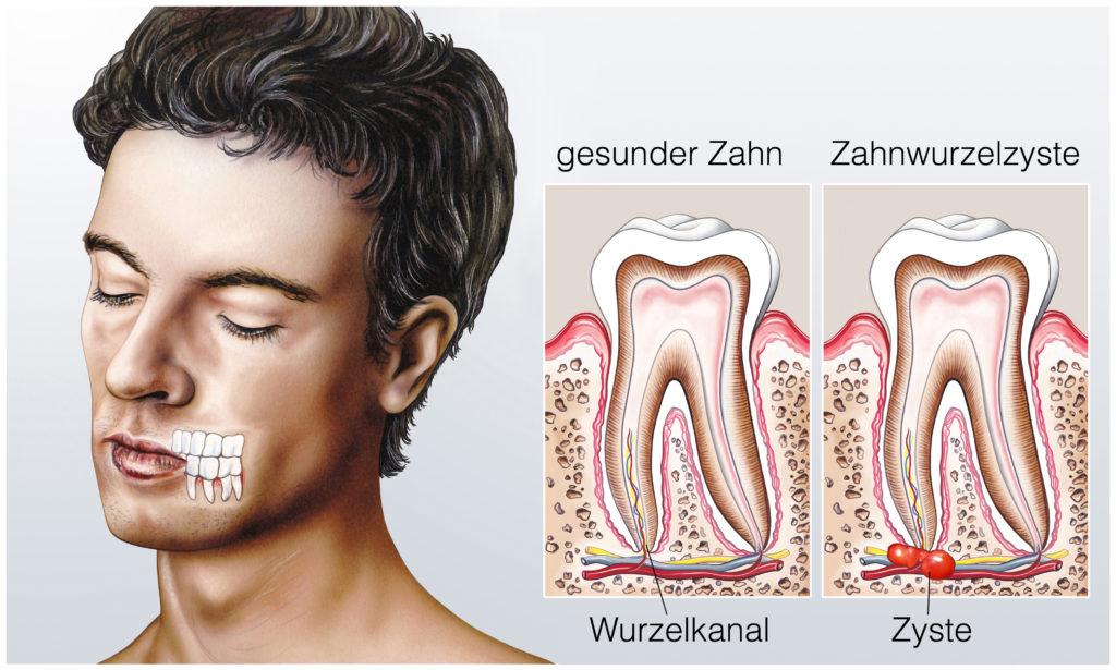 Gesunder Zahn.Zahnwurzelzyste