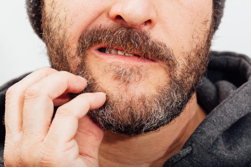 Bartflechte Ursachen Symptome Und Wirksame Hausmittel