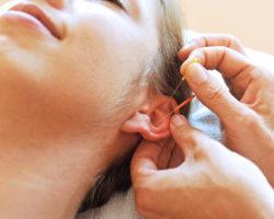 Die Ohrakupunktur ist eine besondere, häufig angewendete Form der traditionellen chinesischen Heilmethode. (Bild: photophonie/fotolia.com)