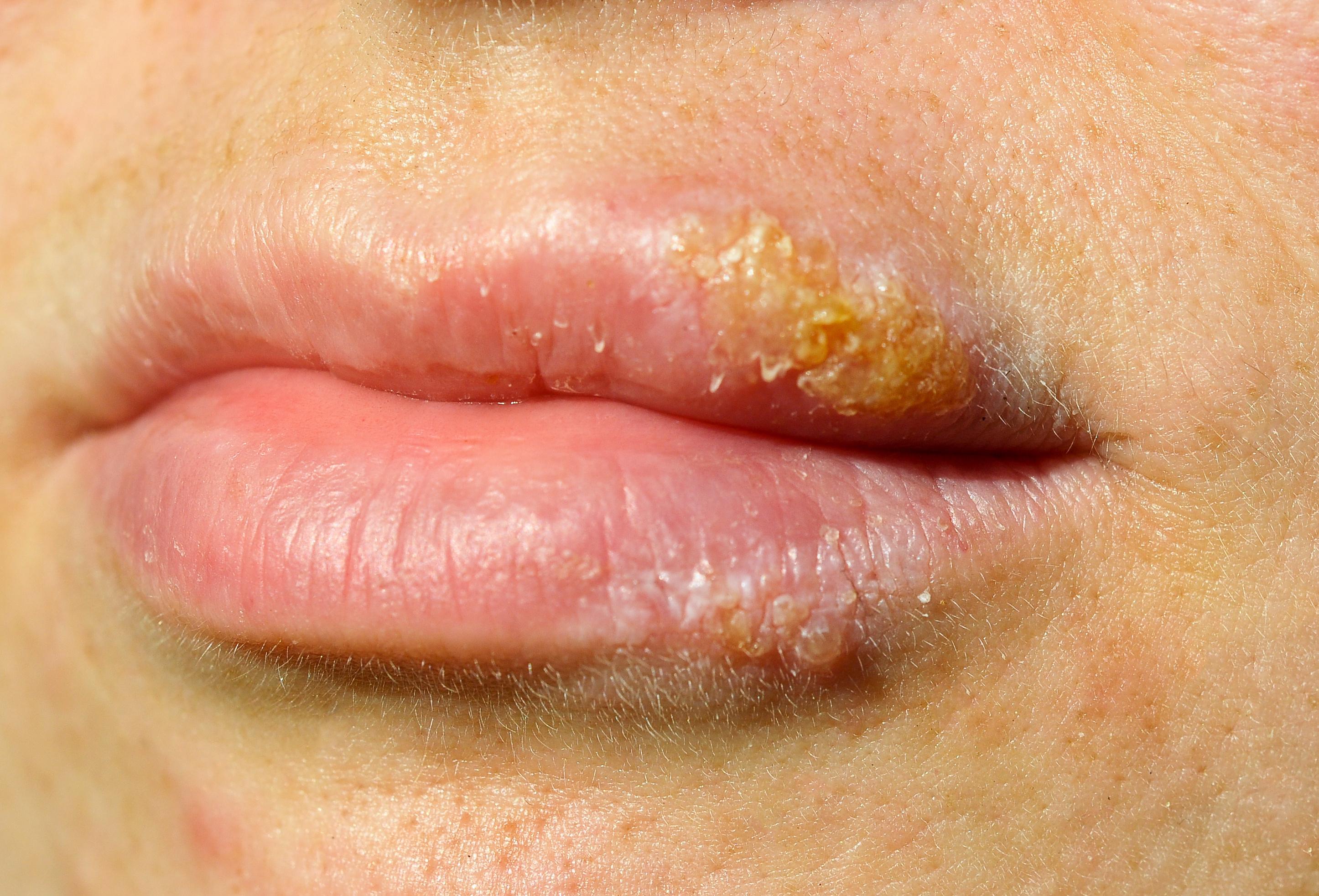 Verwendung von Frauenkondomen mit Herpes