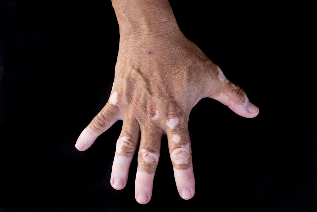 Quadrichrome vitiligo is another variant of vitiligo (on hand)