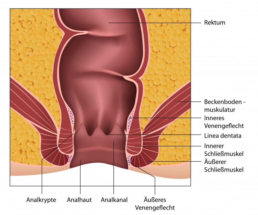 Die Behandlung des langdauernden analen Anbruches konservativ