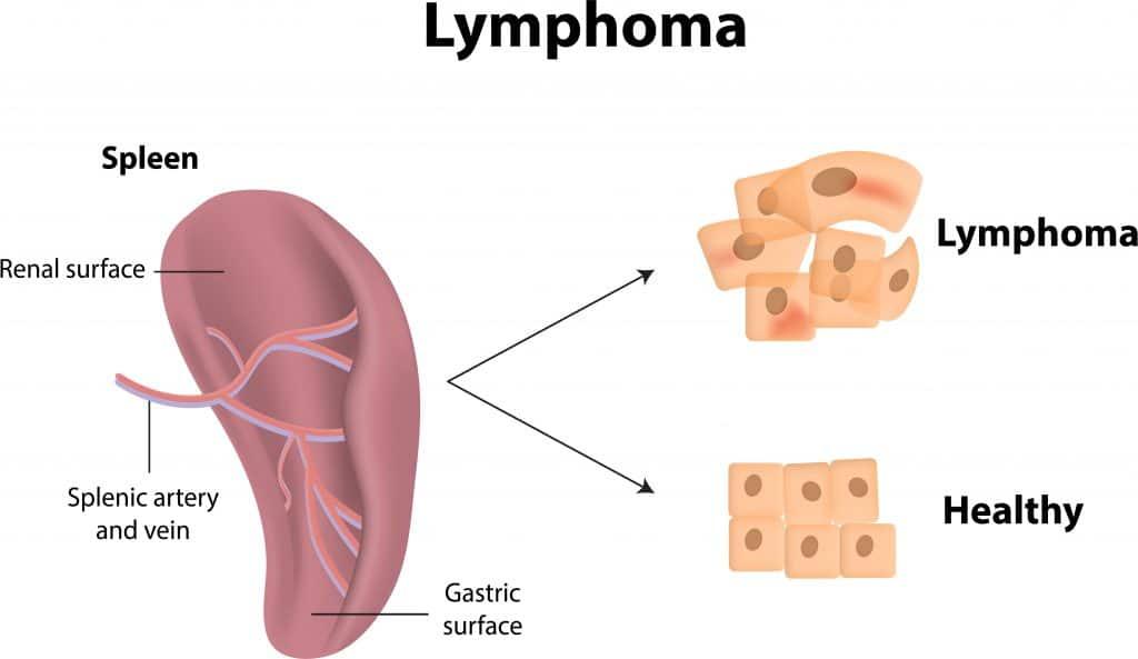 Milzkrebs- Symptome, Diagnostik, Behandlung