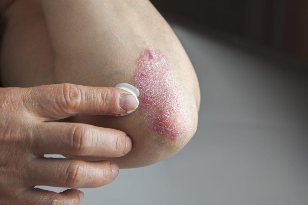 Eine Schuppenflechte ist derzeit nicht heilbar. Doch es steht eine Vielzahl moderner Behandlungsmethoden zur Verfügung, um die Symptome der Hautkrankheit zu behandeln. (Bild: hriana/fotolia.com)