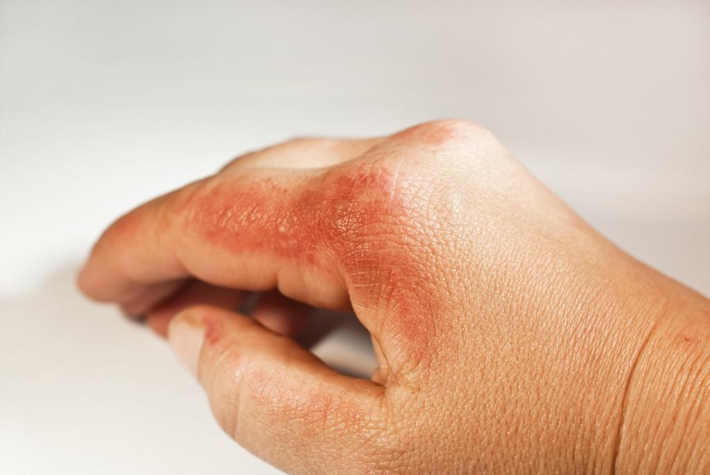 Oft sind Kontaktallergien für den juckenden Hautausschlag verantwortlich. (Bild: Sonja Birkelbach/fotolia)