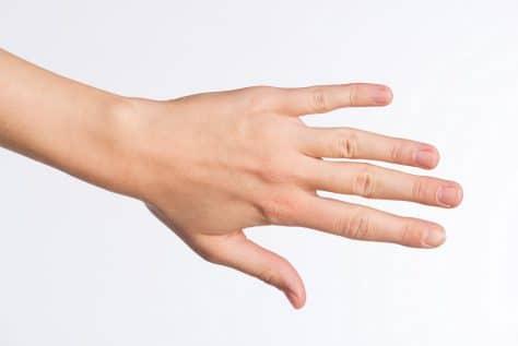 ganglion am finger wie lange krank