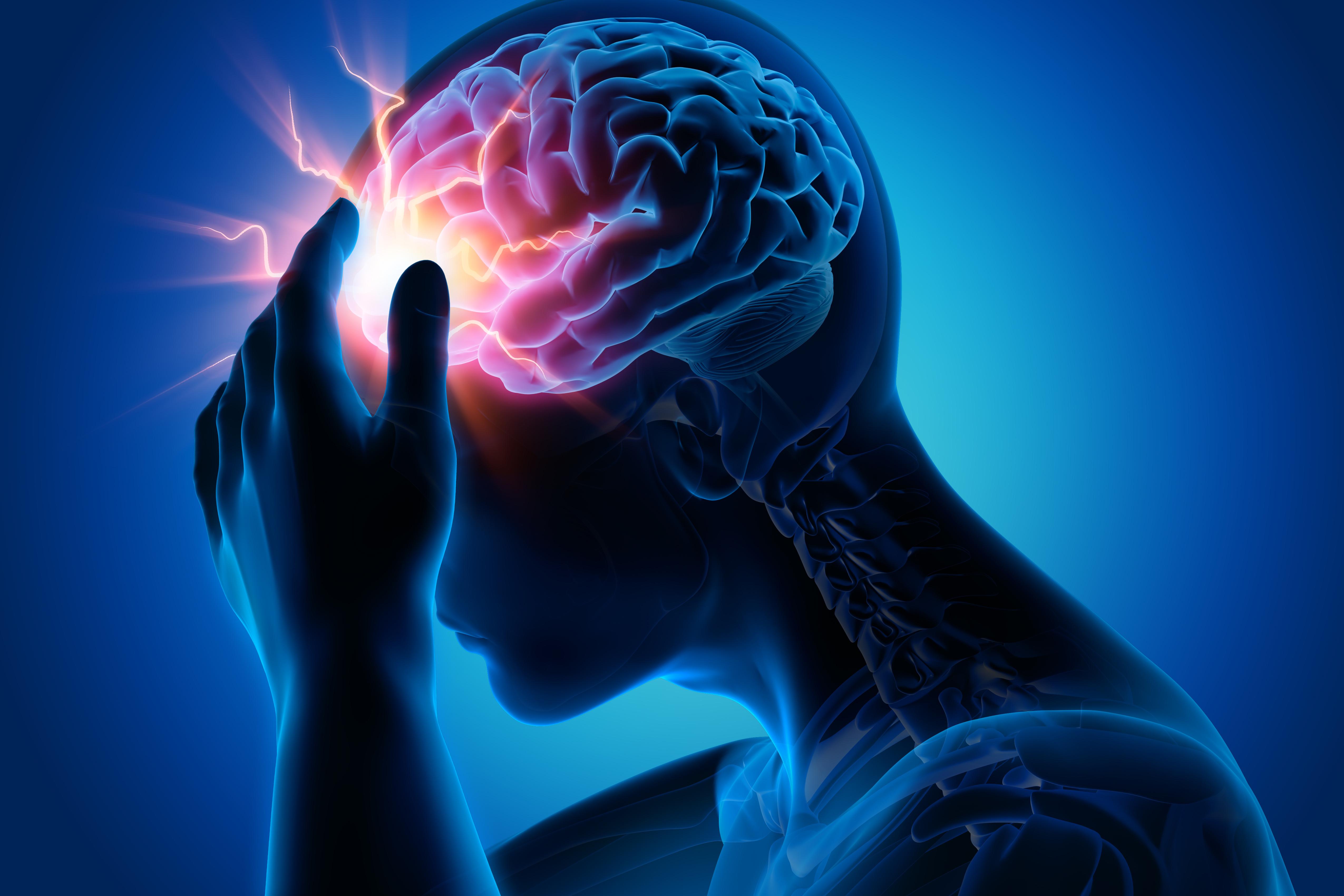 kopfschmerzen stirnbereich was tun