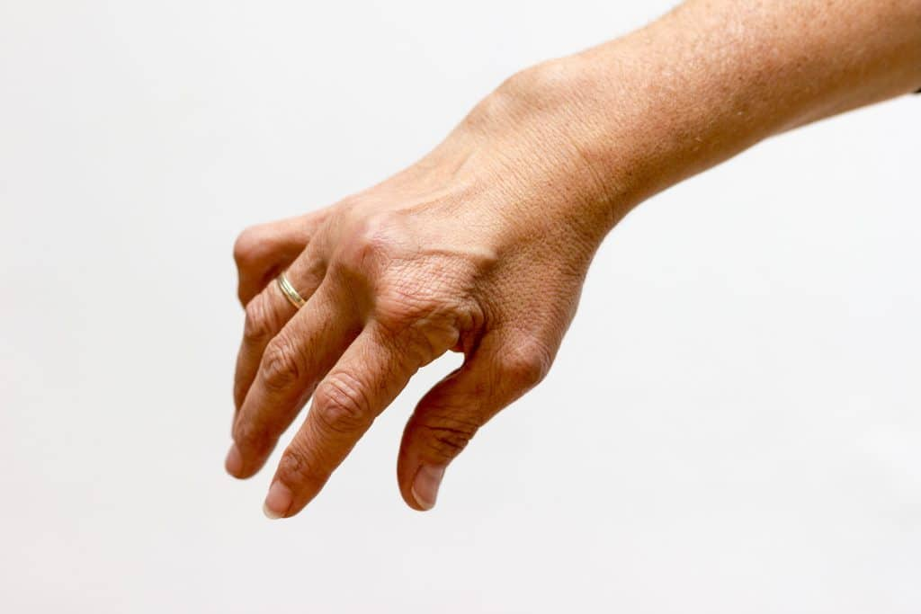 Fingerschmerzen — Beschwerden bei jedem Griff