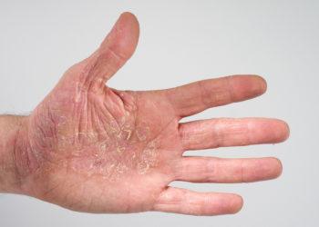 Neurodermitis bedeutet für die meisten Betroffenen eine starke körperliche und psychische Belastung. (Bild: casi/fotolia.com)