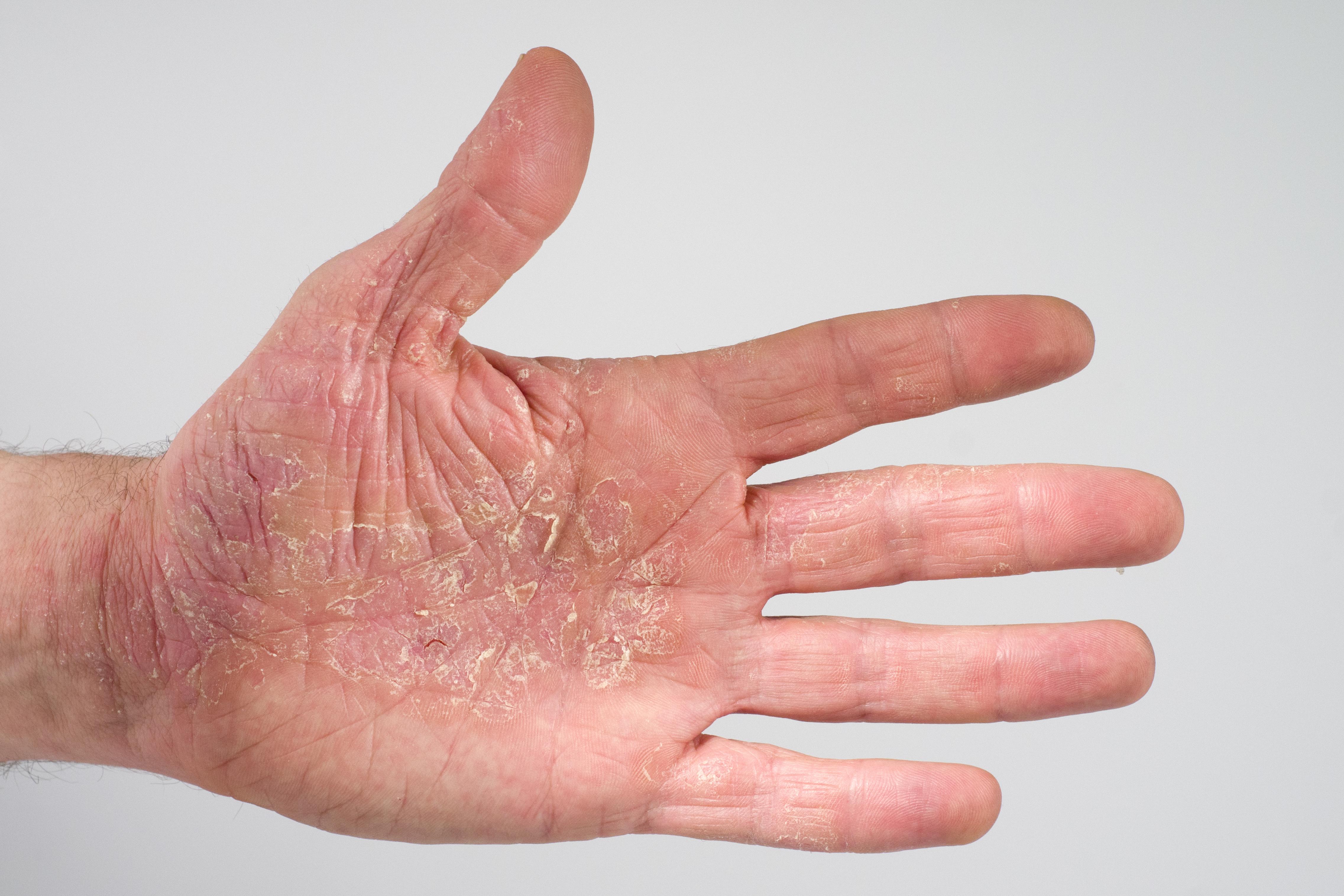 Schuppenflechte Hand Hausmittel