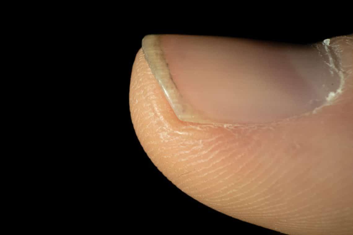 Fingernägel dicke BIO