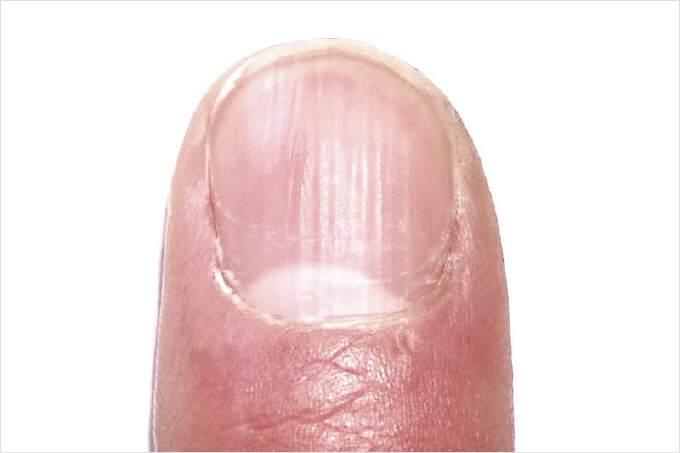 Das Medikament von gribka auf der Haut des Körpers