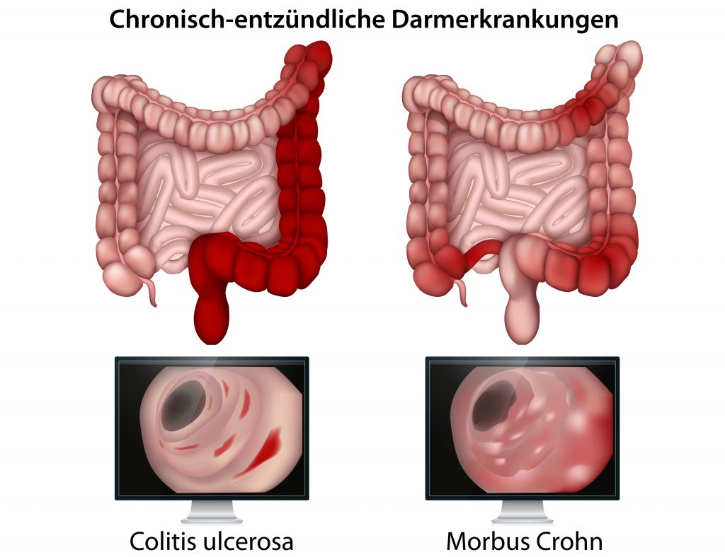 Die genauen Ursachen der Darmerkrankungen Morbus Crohn und Colitis ulcerosa sind bis heute nicht geklärt. (Bild: bilderzwerg/fotolia.com)