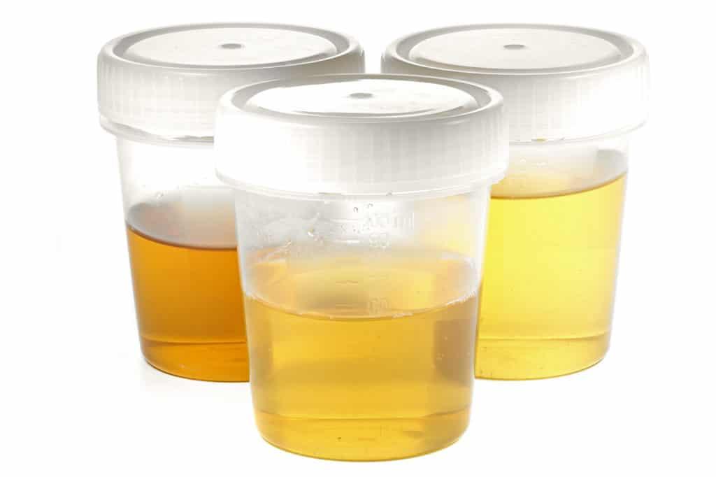 Übelriechender Urin / Stinkender Urin - Ursachen, Symptome
