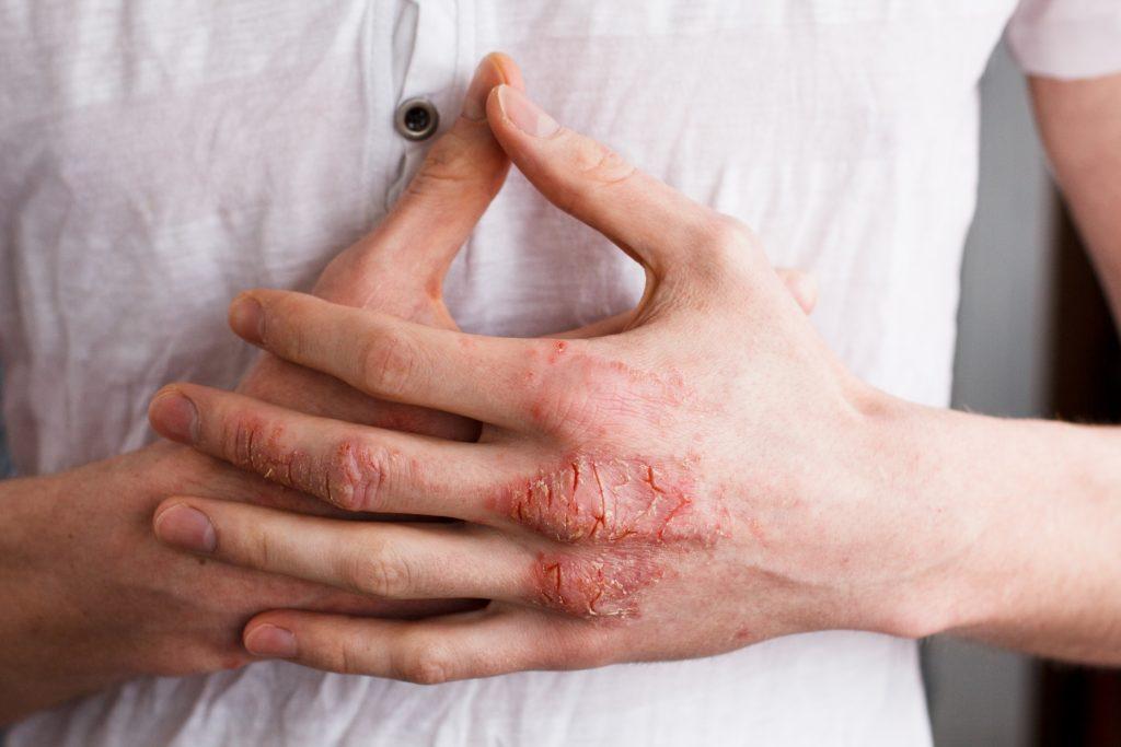 Handinnenseite blauer fleck Kahnbeinbruch: Ursachen,