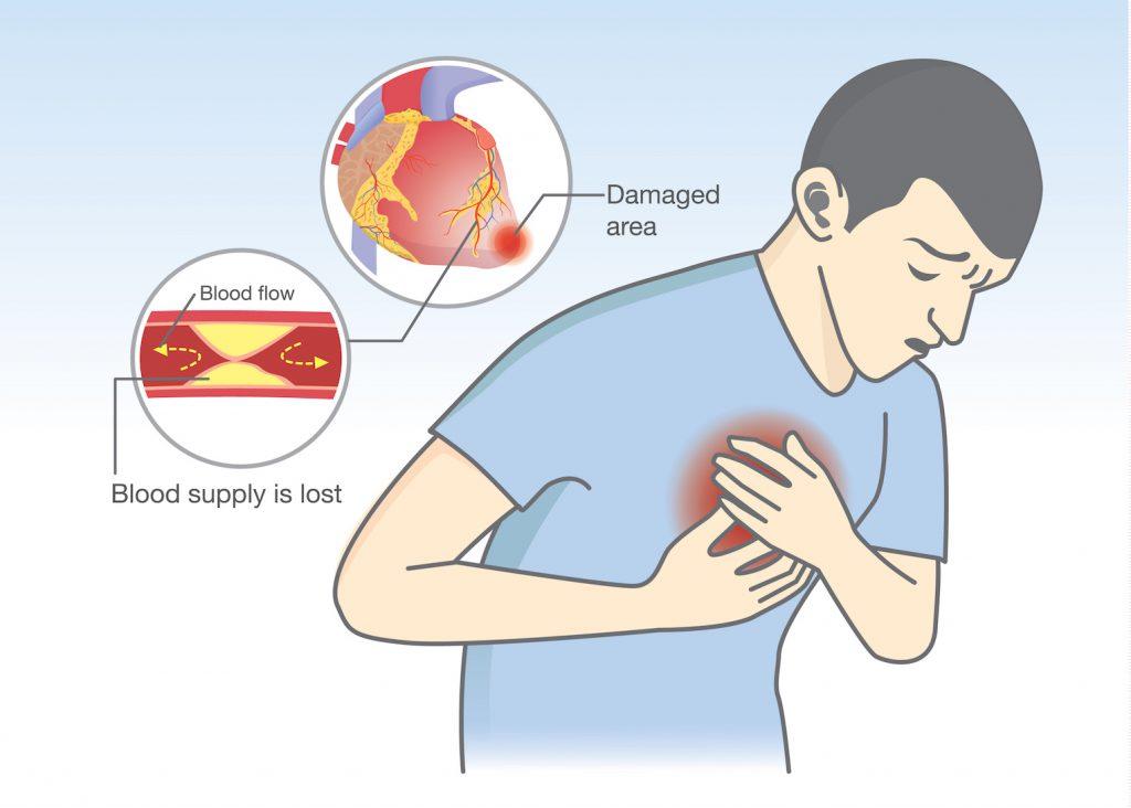 Brustkrebs und andere Brusterkrankungen: Schmerzen
