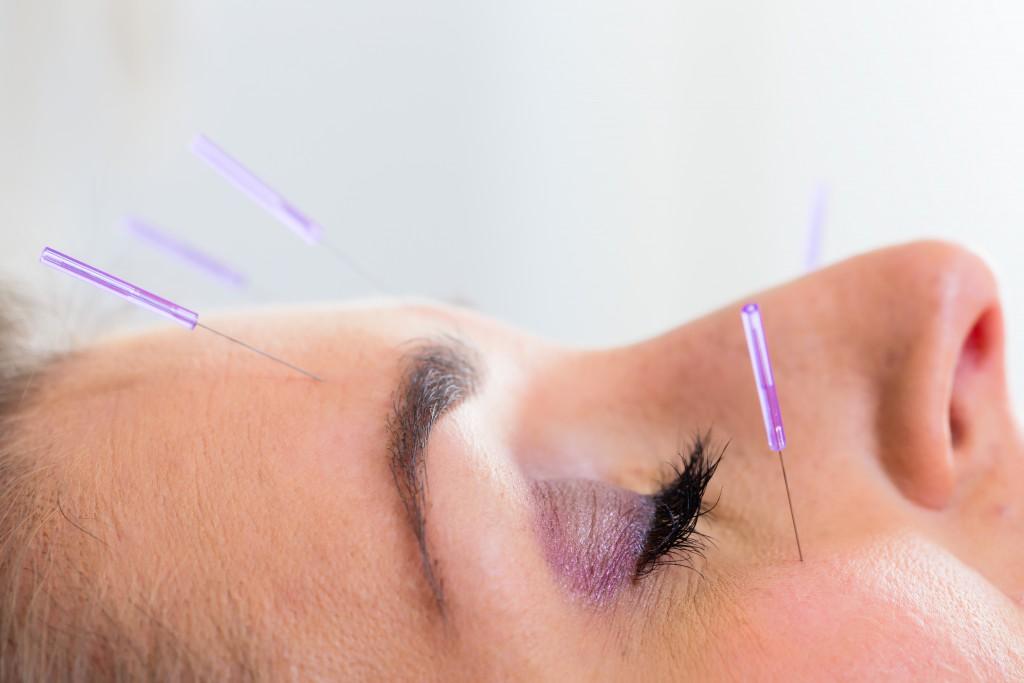 Akupunktur kann vor allem chronische Schmerzen lindern. (Bild: Kzenon/fotolia)