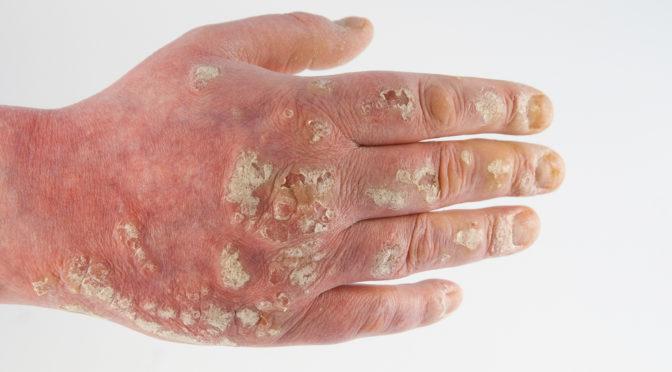 Hautflechte Symptome und Behandlung