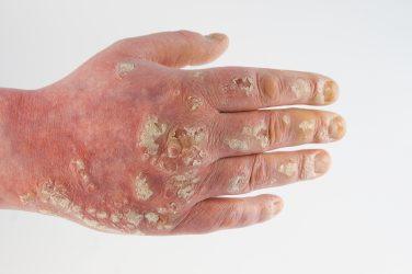 Die Zichorie für die Behandlung der Schuppenflechte