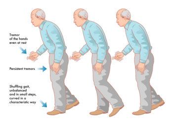 Die neuesten Entwicklungen der Parkinson-Diagnostik und -Behandlung werden auf dem Jahreskongress der DGN in Leipzig vorgestellt. (Bild: rob3000/fotolia.com)