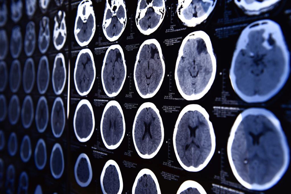 Die EInnahme der Antibabypille führt zu Veränderungen im Gehirn. (Bild: nimon_t/fotolia.com)